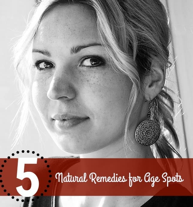 5 Natural Remedies for Age Spots